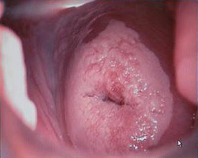 дисплазия шейки матки тяжелой степени