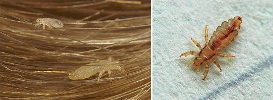 нимфы и взрослые особи бельевых (платяных) вшей