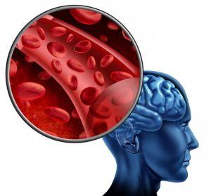 цереброваскулярная болезнь
