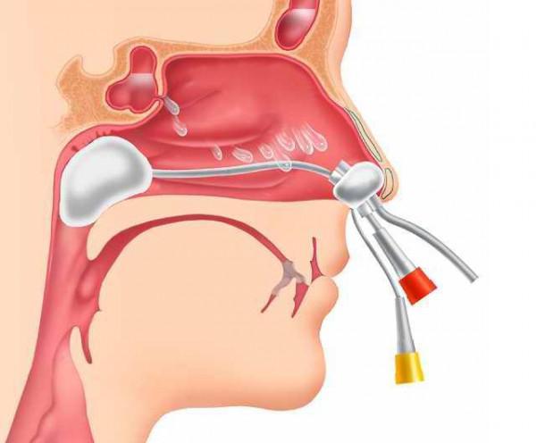 Лечение гайморита с помощью ямик процедуры