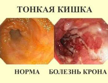 Здоровый и пораженный кишечник