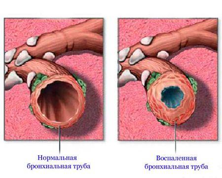 здоровая и воспаленная бронхиальная труба