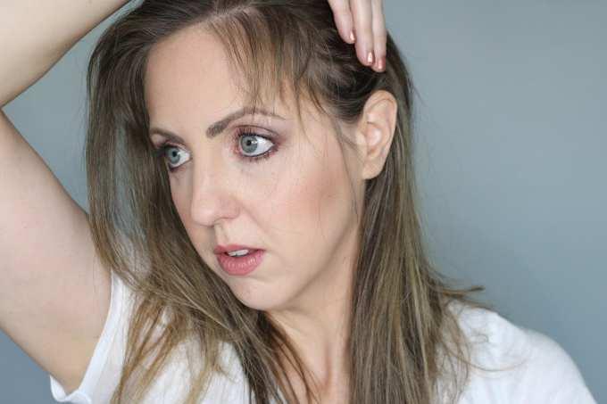 Facial hair after pregnancy