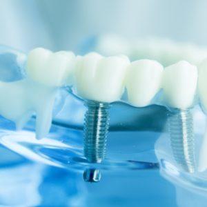 名古屋でインプラントをお考えなら名駅アール歯科・矯正歯科