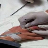 Flex per sfilare l'anello nuziale: assurda vicenda nel napoletano
