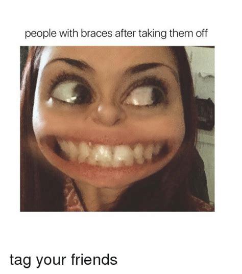 Braces Off Memes