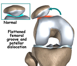 Patellofemoral Instability and Anterior Knee Pain | Kirk