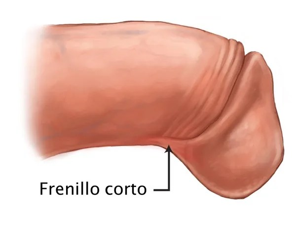 rotura de frenillo
