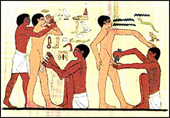 ¿Produce la circuncisión alguna alteración en la función sexual?
