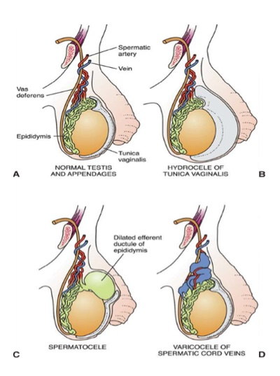 hidrocele y varicocele