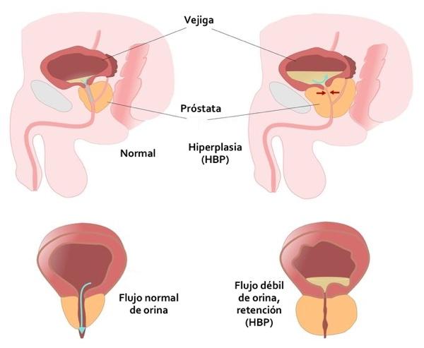 prostatitis crónica hiper próstata areo
