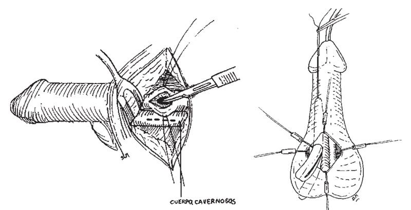 cirugía de implante de prótesis de pene