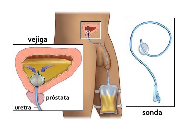 sonda urinaria