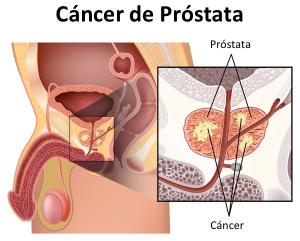 tiempos de progresión del cáncer de próstata