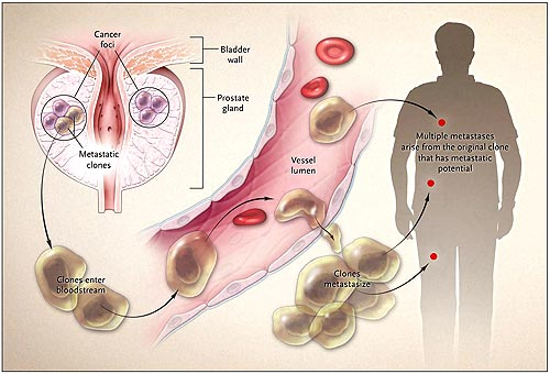cáncer de próstata metastásico