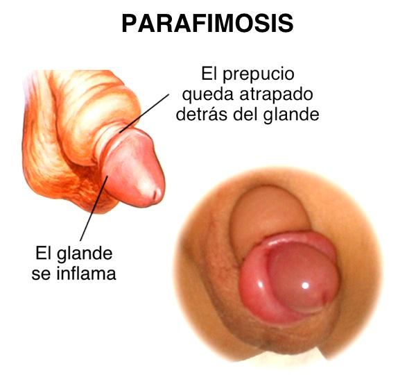 parafimosis