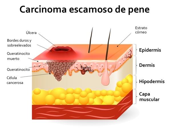 ¡El cáncer de pene existe! Consulta cualquier pequeña lesión que te encuentres