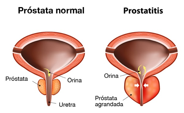 La prostatitis crónica sufre como las bestias