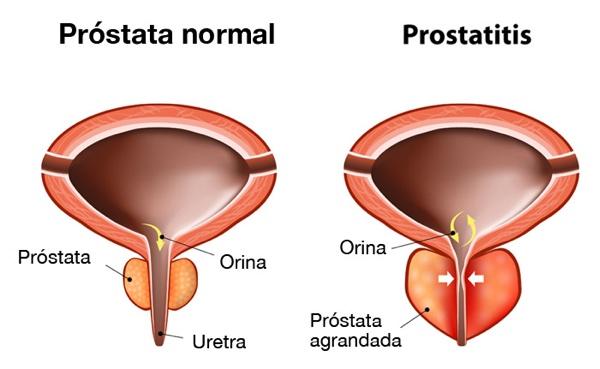 Prostatitis és poliuria