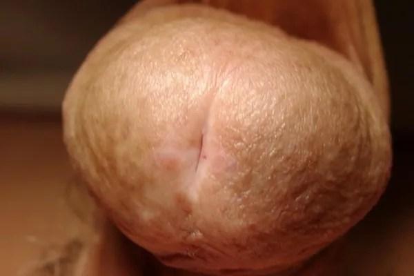 Estenosis de meato uretral ¿en qué consiste? ¿qué solución tiene?