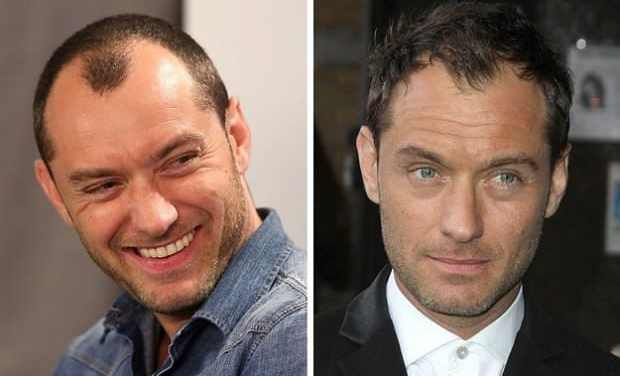 Who Is Suitable For Hair Transplant Surgery?