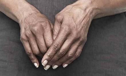 Five Top Tips To Aid Arthritis