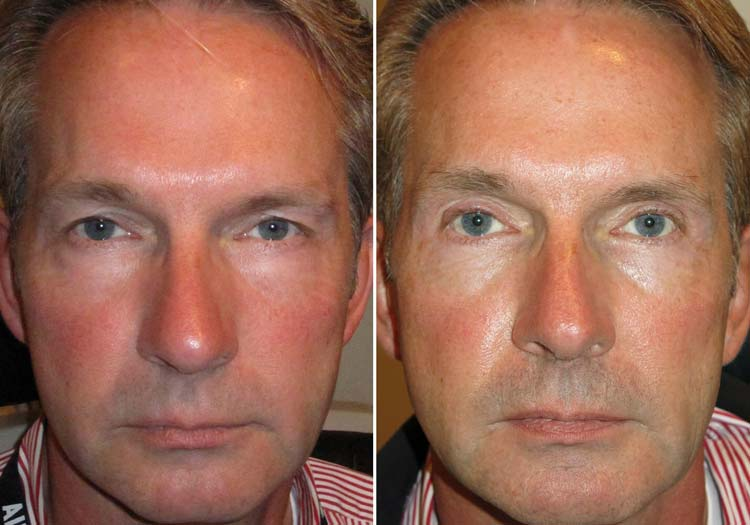 Cosmetic Surgery Trends - Beards & Blepharoplasty