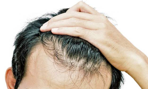 Hair Loss and Erectile Dysfunction Help is Just a Call Away