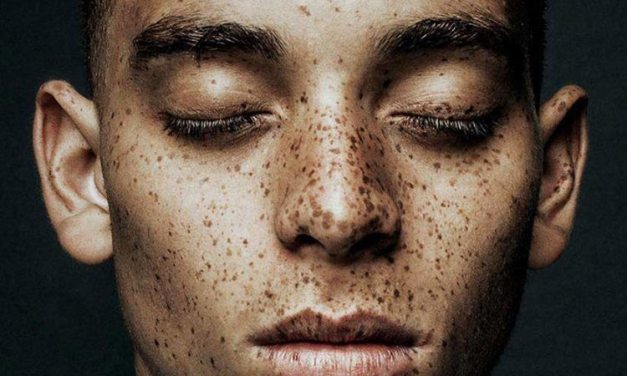How To Get Freckles Naturally Without Sun