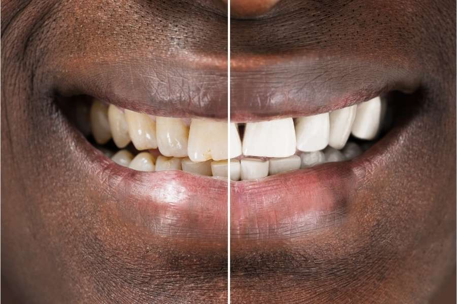 How You Can Whiten Your Teeth at Home