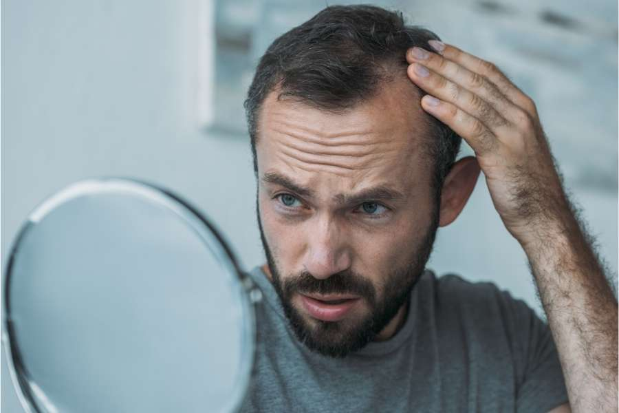How to Cope with Hair Loss While In Quarantine