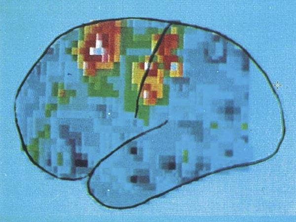 mente-amica-dimostrata-scientificamente-validita-rilassamento