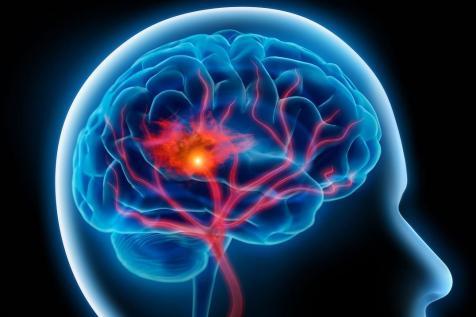 Risultati immagini per demenza ictus