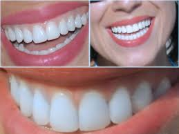 diş protezi