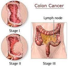 kolon kanseri