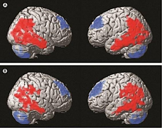 estimulacion cerebral profunda