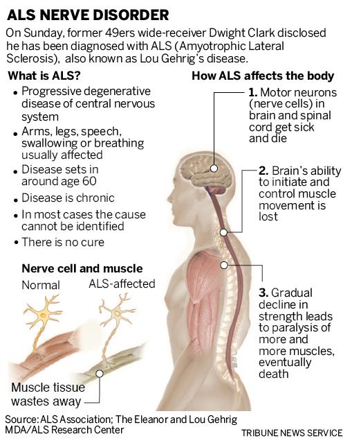 SJM-ALS-0321-90-01