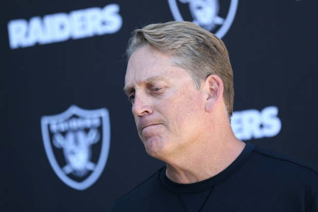 Oakland Raiders head coach Jack Del Rio answers questions during a news conference at their practice facility in Alameda, Calif., on Wednesday, Oct. 4, 2017. (Anda Chu/Bay Area News Group)