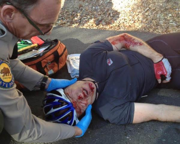 A park ranger attends to cyclist Victor Lorenc after his Aug. 22, 2015, who was hit head-on by a car passing in the opposite direction around a blind turn. (Photo courtesy of Victor Lorenc)