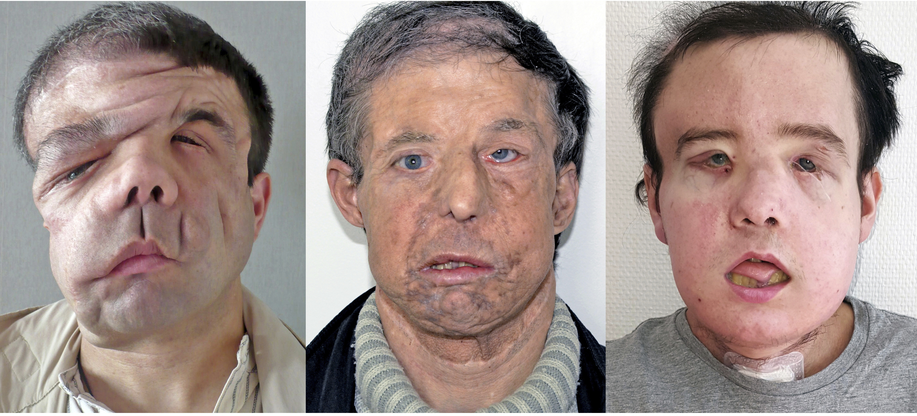 Facial tumors pictures