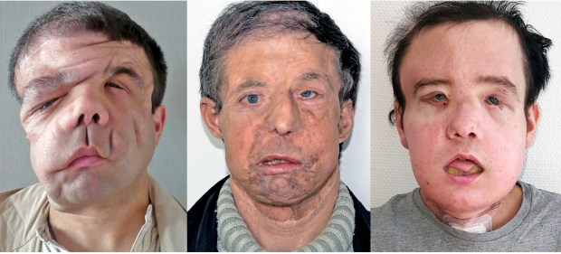 Jerome Hamon: At left, disfigured by facial tumors; center, with a face from a 60-year-old donor; right, with his second transplanted face.(HEGP AP-HP via AP)