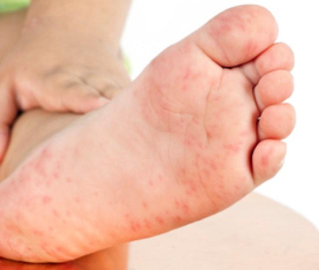 Handfootdiseasearticle