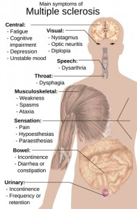 Symptoms_of_MS