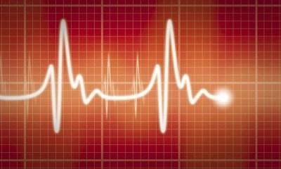 Orthostasis & heart abnormalities