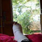 I Broke My Foot