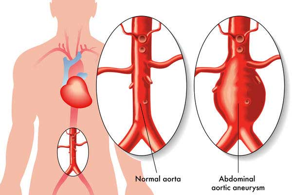 Abdominal-Aortic-Aneurysm-Picture