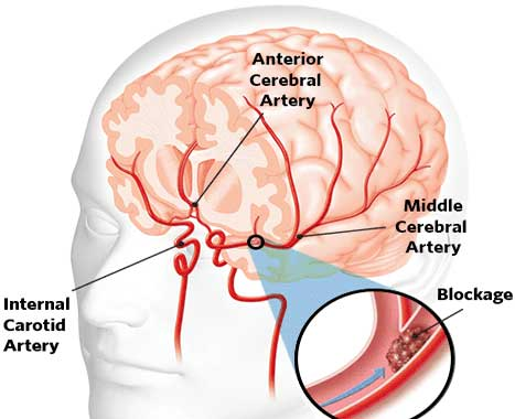 HBP-causes-stroke