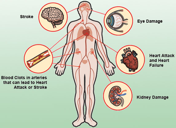 risks-and-complications-of-HBP