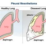what is the meaning of the word u201cpleurau201d? mesorfa information andvisceral pleura parietal pleura