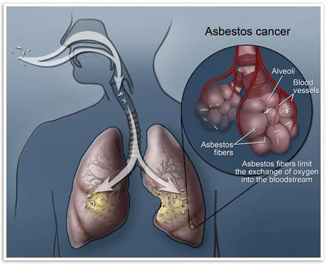 Diagnostic Tools Include Ct Scans And Mris For Patients Where Asbestos Cancer Is Suspected In Most Cases These Imaging Scans Will Be Able To Provide A